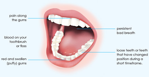 Mouth and signs of gum disease