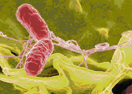 Color-enhanced scanning electron micrograph showing Salmonella typhimurium (red) invading cultured human cells